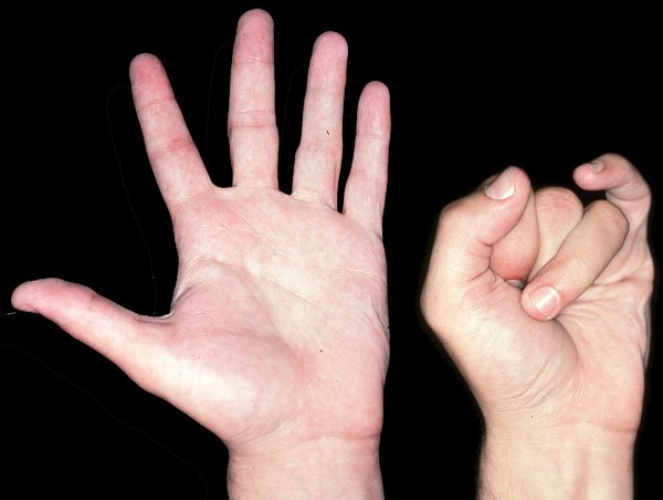 Humans With Webbed Hands Interesting facts about hands Webbed Hands