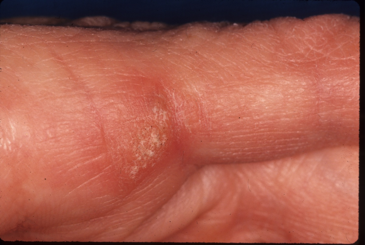 How To Remove Hand Warts Naturally