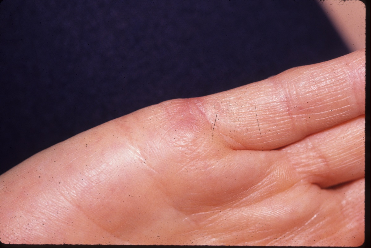 What Causes Common Warts? Viruses and Skin