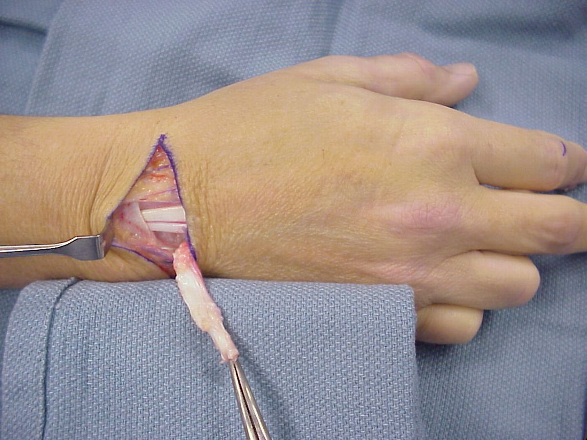 Reconstruction: Staged Flexor Tendon Reconstruction