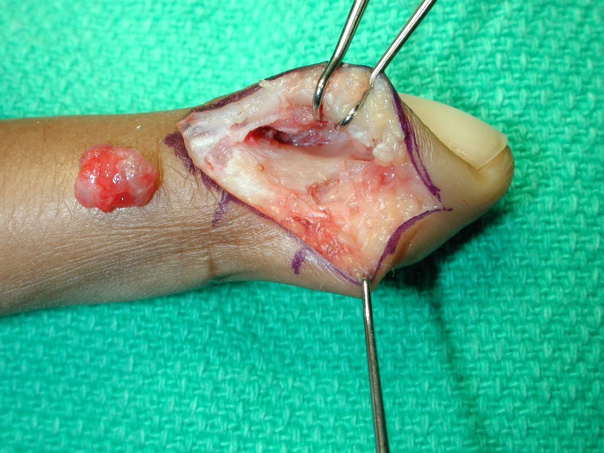 glomus tumors #11