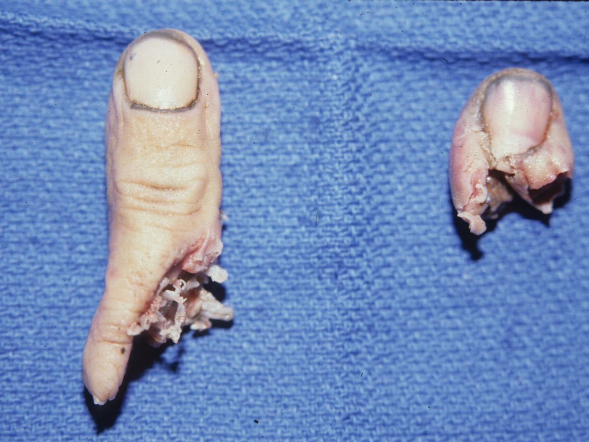 Tumor  Inclusion Cysts Of The Distal Phalanx Excision And