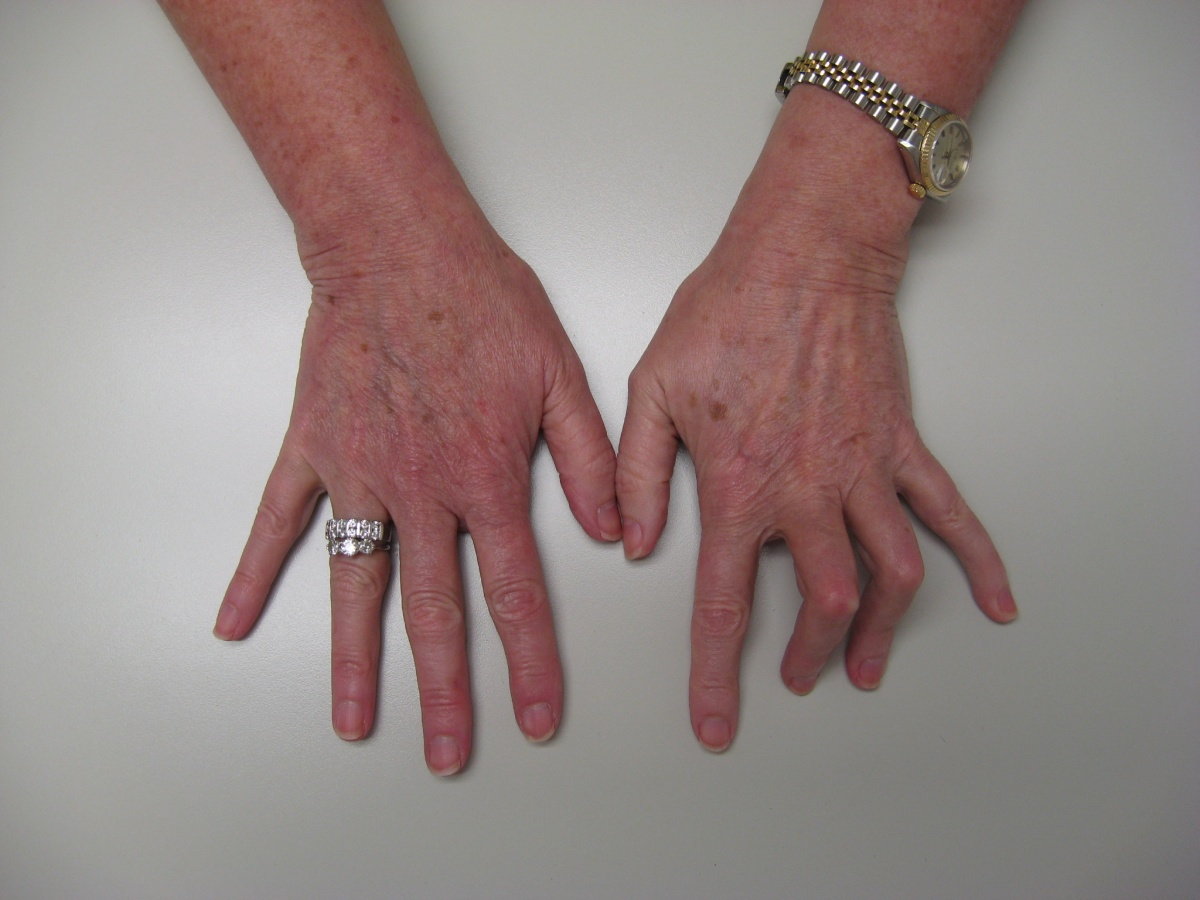 Transformation: Proximal Interphalangeal Joint Flexion Contractures ...
