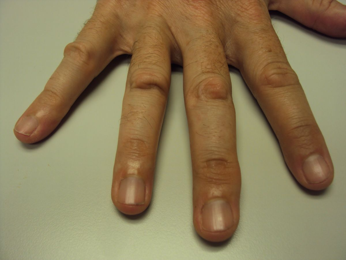 knuckle calluses