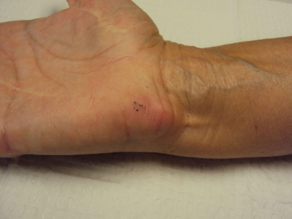 triamcinolone injection callus knuckle