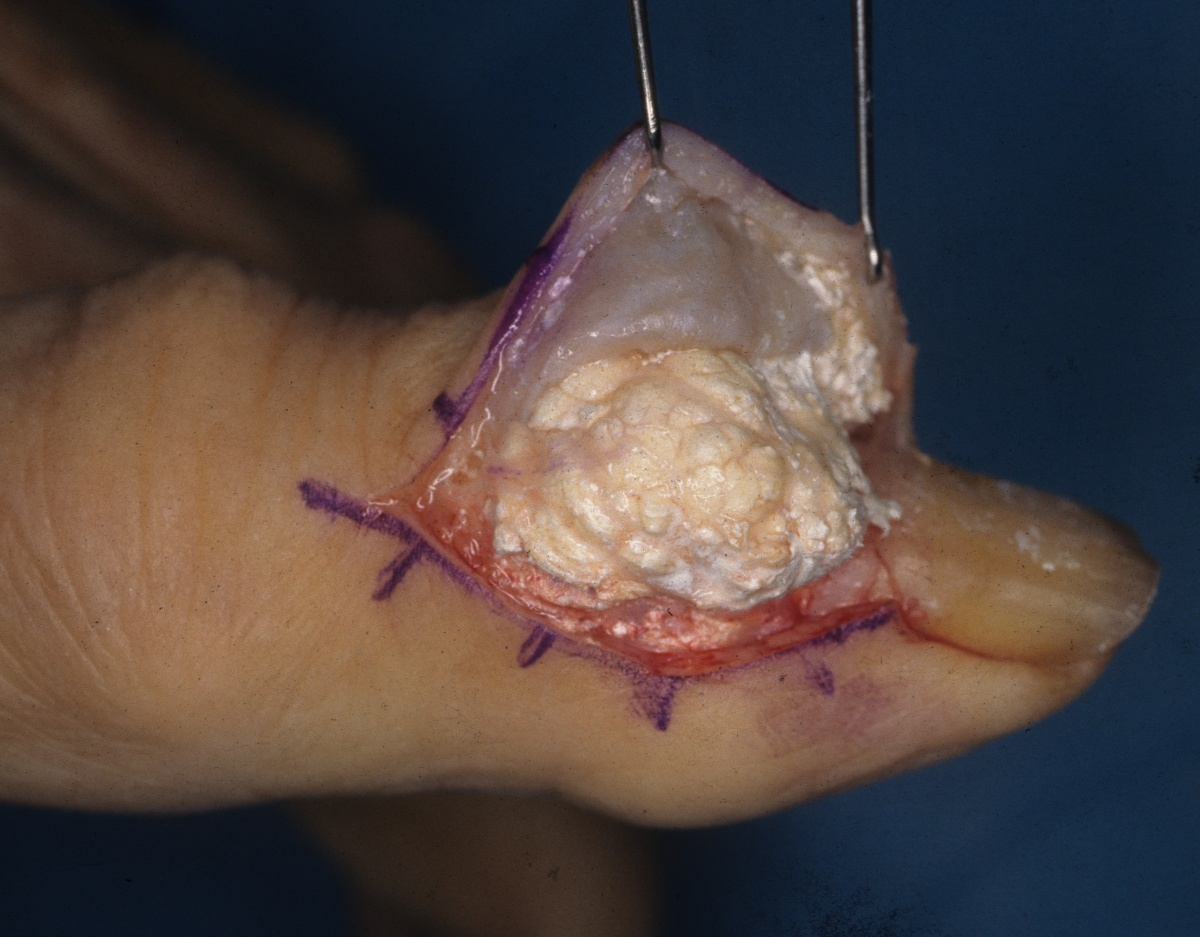 Tophi Removal Without Surgery - GoutPal