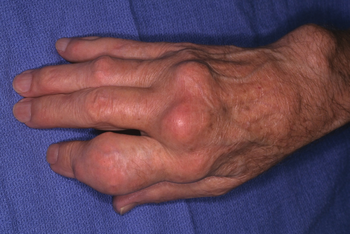 gout remedies ice excess uric acid in urine gouty arthritis zones