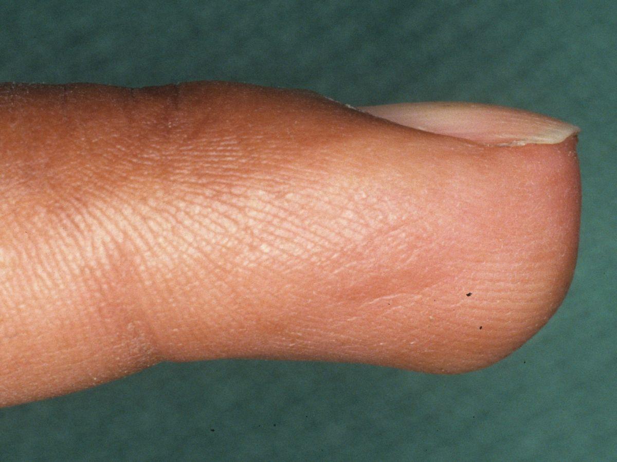 Growth On Fingertip
