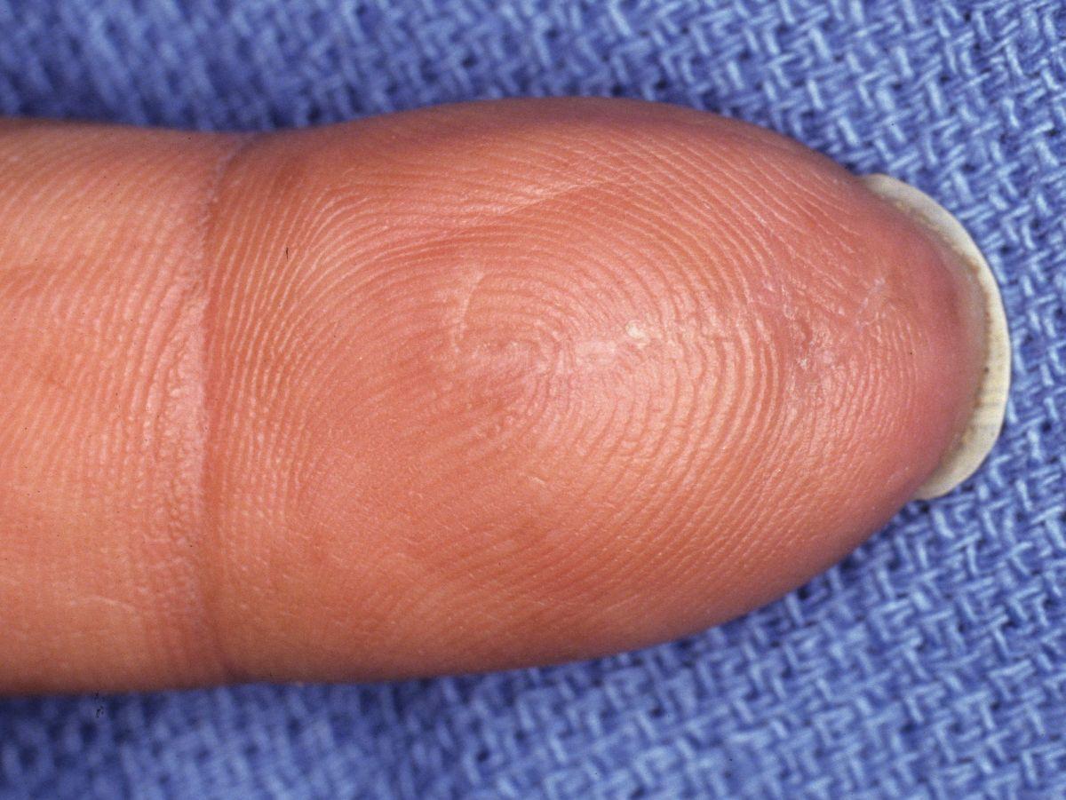 Tumor: Finger Tumor