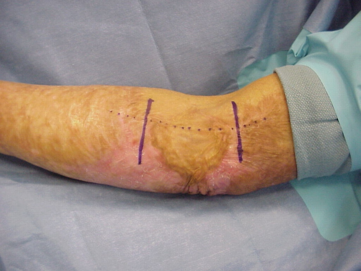 Clinical Example: Free hand harvest thick split thickness skingraft ...