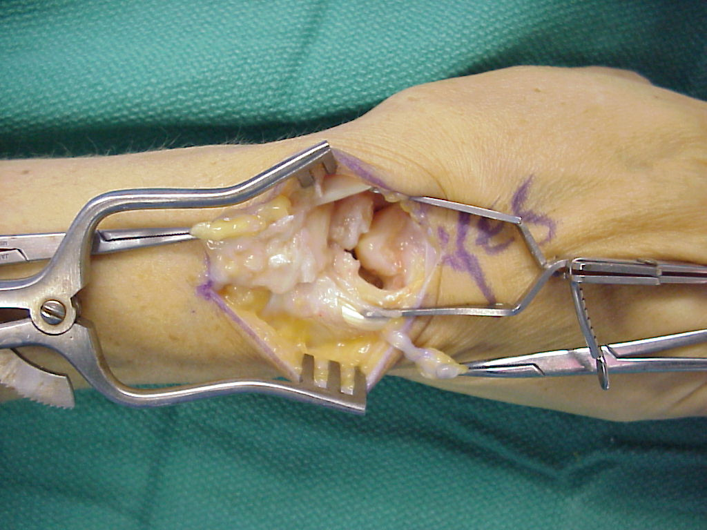 Reconstruction: Extensor retinaculum transfer for scapholunate ...