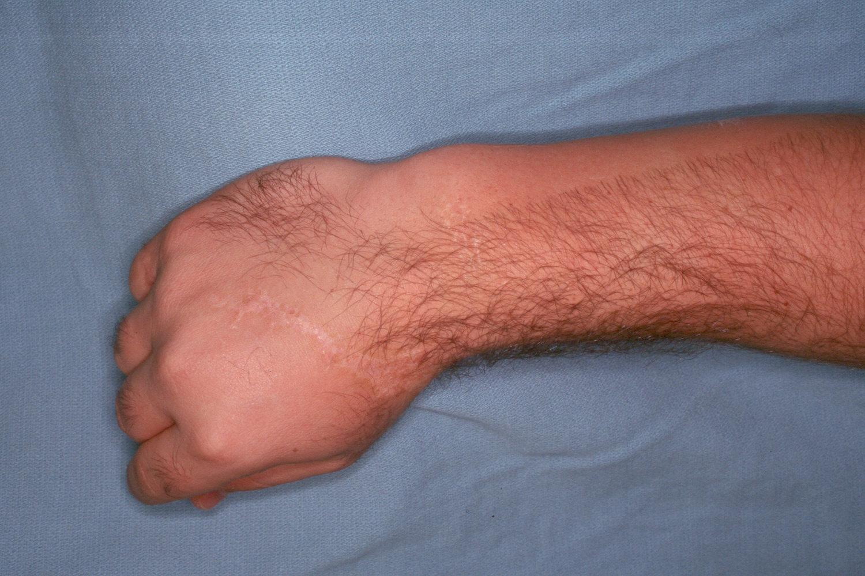 Reconstruction: Ulnar shortening osteotomy for distal radius ...