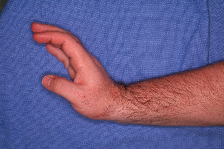 Reconstruction Ulnar Shortening Osteotomy For Distal