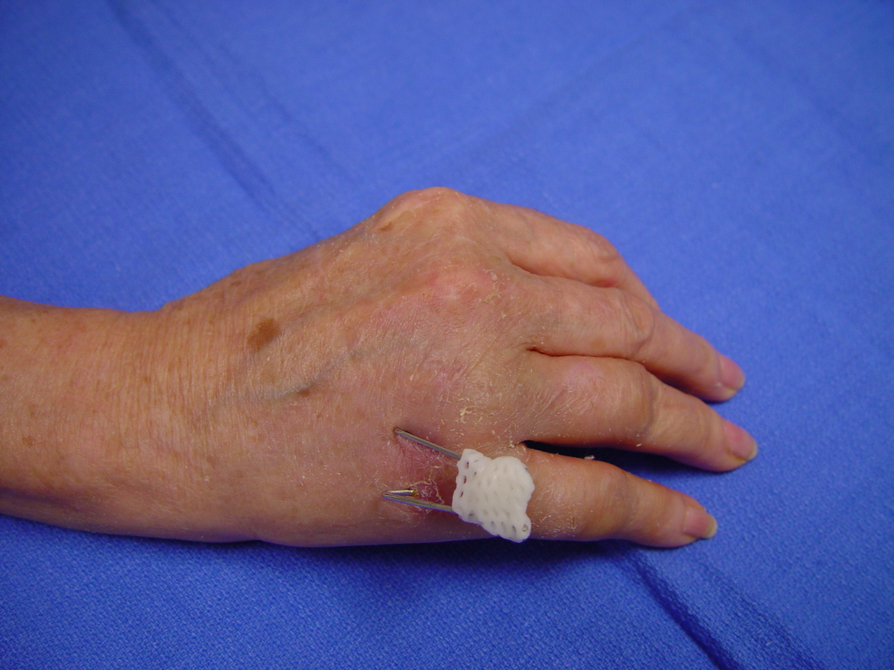 trauma  percutaneous fixation of proximal fracture of the