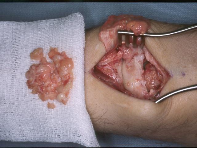 Prevenirea ?i tratamentul remediilor folclorice pentru artrita