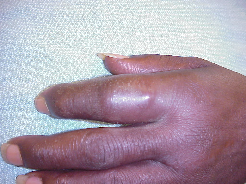 Squamous Cell Cancer Finger