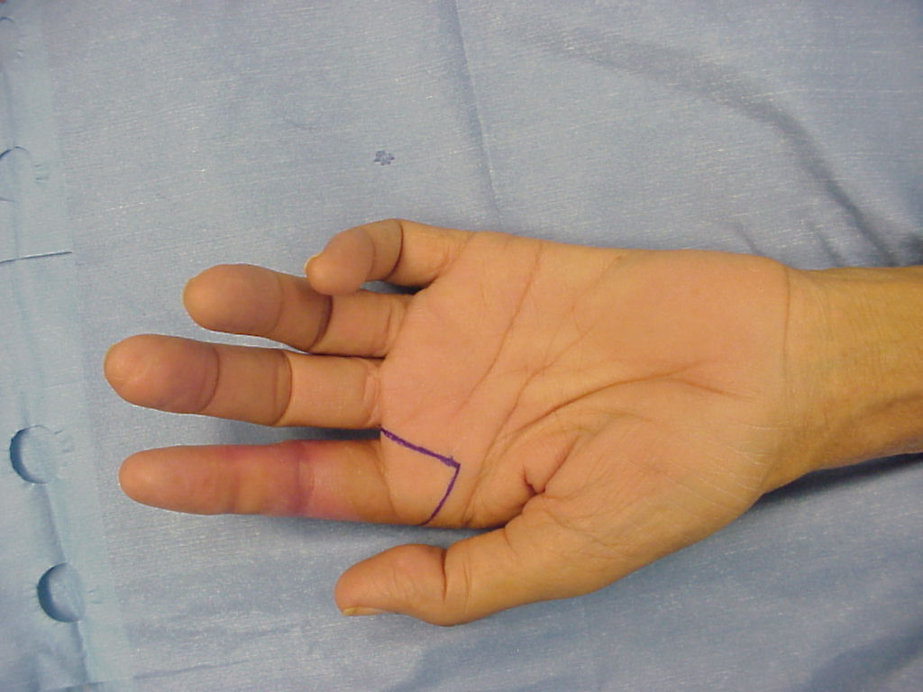 Vascular Ray Amputation For Traumatic Ischemic Finger