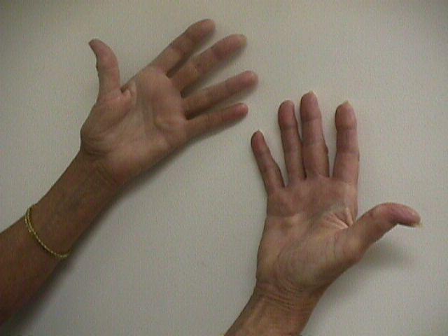 ARTHRITIS AT BASAL THUMB JOINT - Hand Surgery
