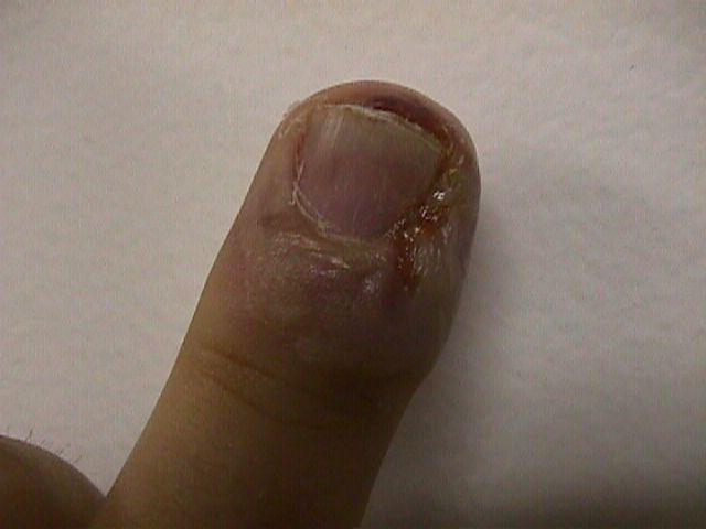 Paronychia (Nail Infection) - eMedicineHealth