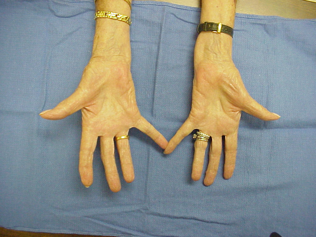 Thumb adduction contracture helpful