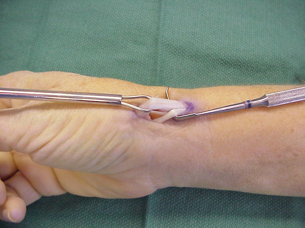 Thumb CMC Basal Joint Arthroplasty - Thumb Joint