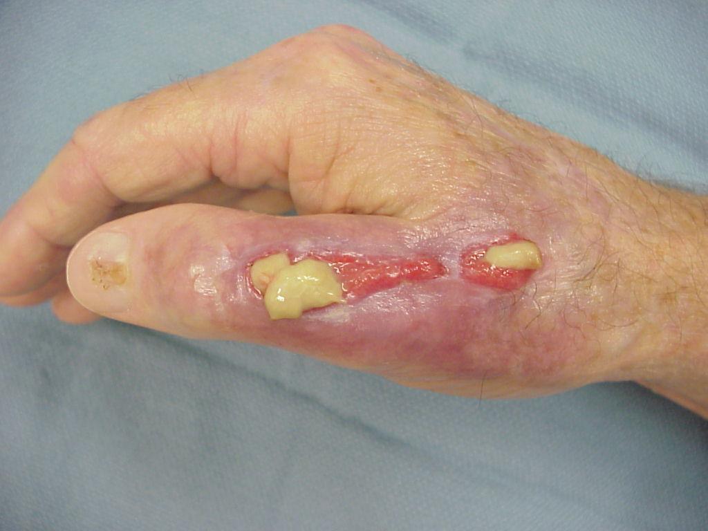 Infection: Septic liquefaction of extensor tendon repair