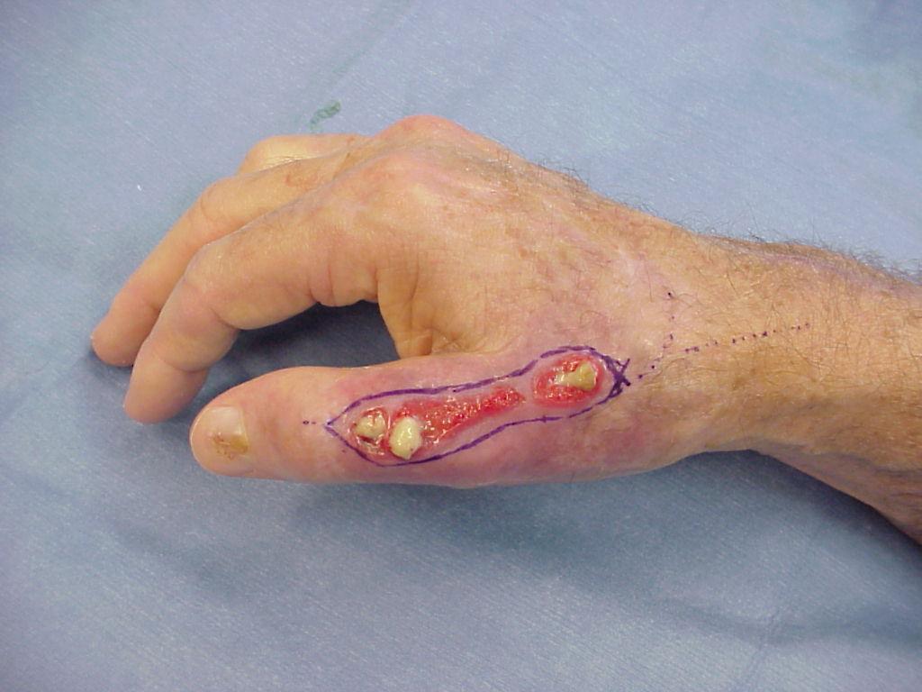 extensor tendon surgery gallery