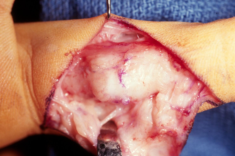 thumb reconstruction pediatric
