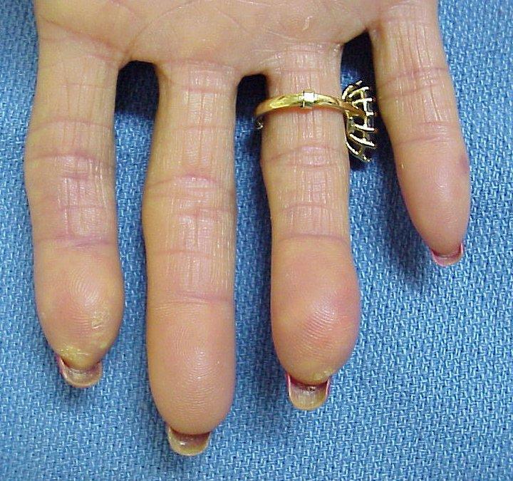 transformation: crest syndrome with scleroderma, telangiectasias, Cephalic Vein