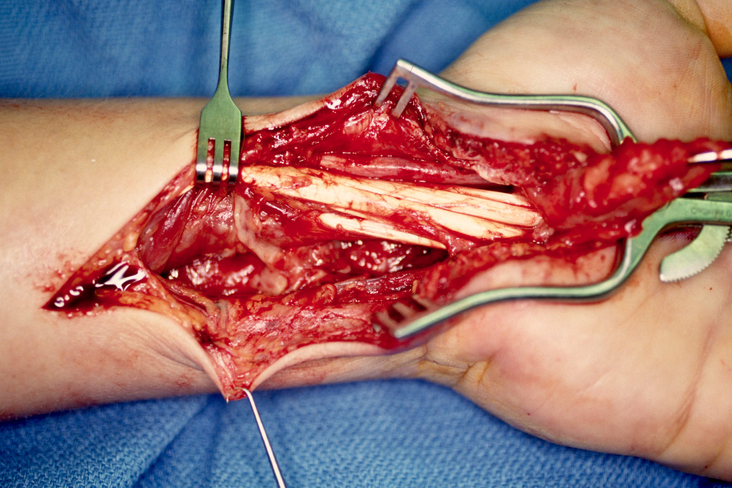 Clinical Example: Deep infection following open carpal tunnel release