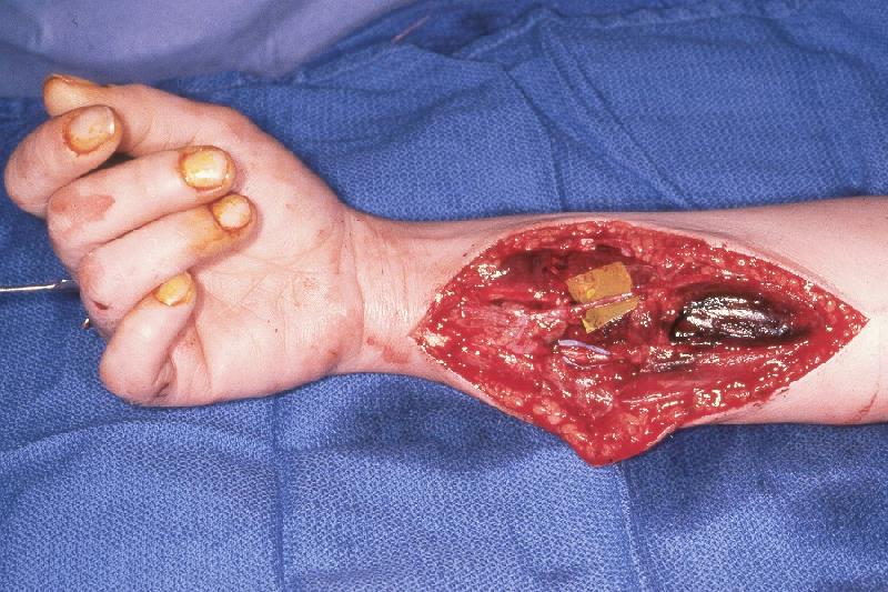 trauma: examples of exploration of hemorrhage stained upper, Human Body
