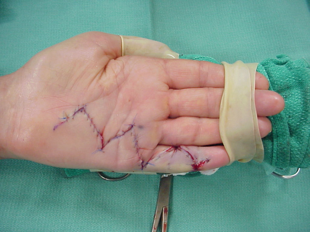 Dupuytren's: Palmar Fasciectomy bulky disease small finger