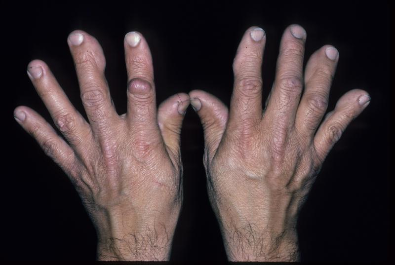 Vasculitis: heldere informatie van de dermatoloog