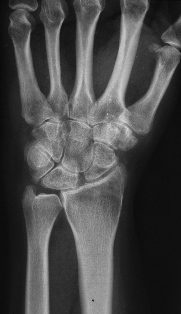 Arthrose Hand