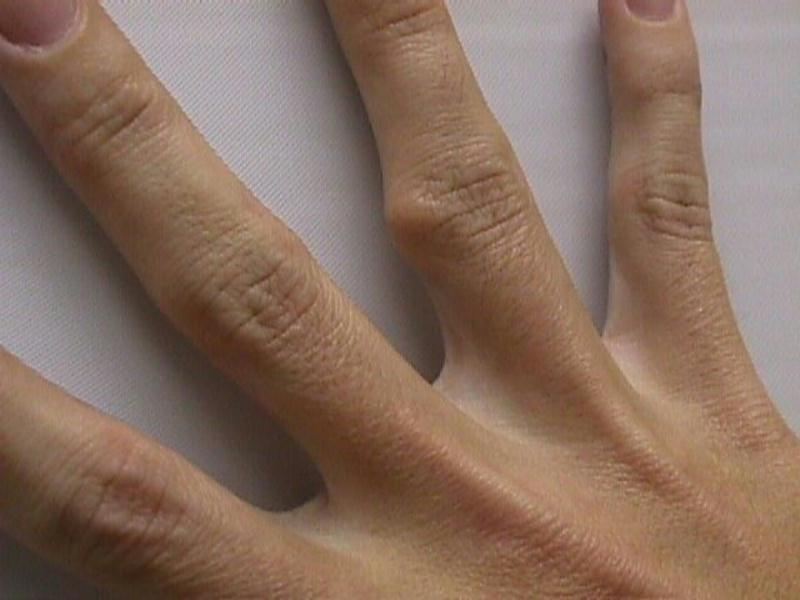 proximal+interphalangeal+joint+finger+growth+pain
