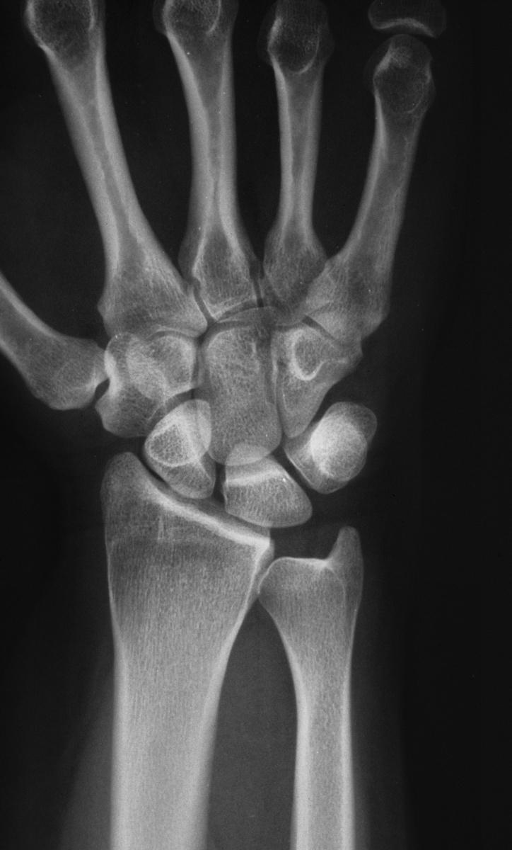Arthritis Diffuse Inflammatory Osteoarthritis